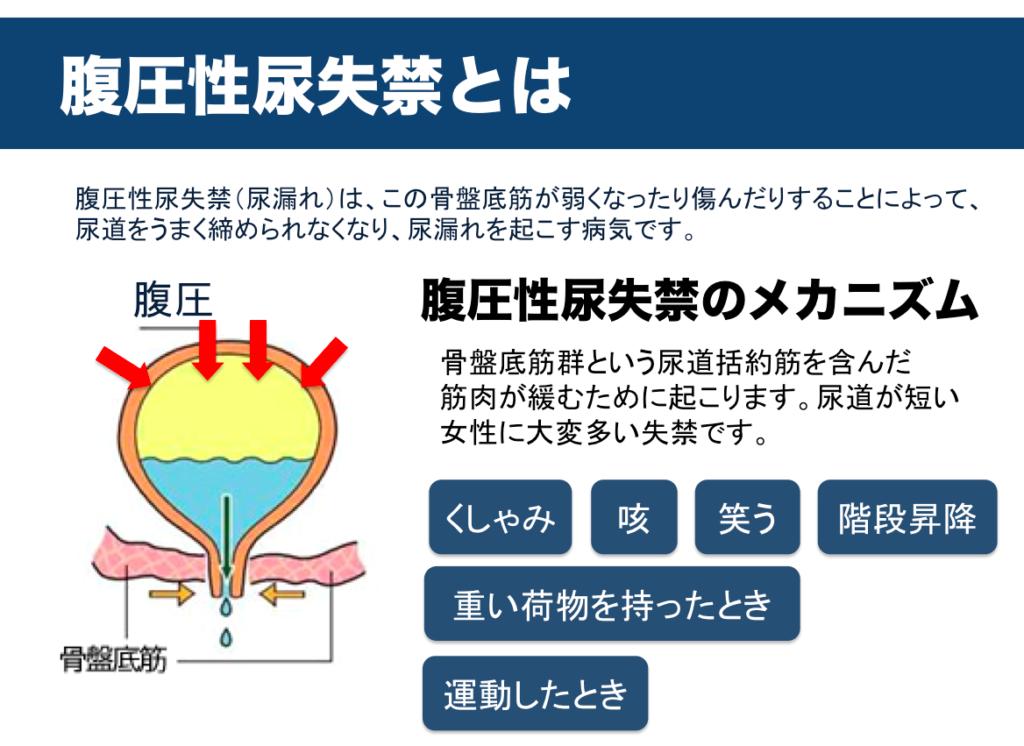 尿失禁の種類 腹圧性尿失禁