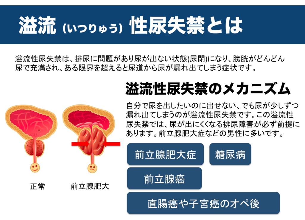 溢流性尿失禁 前立腺肥大症 前立腺癌 ポタポタ